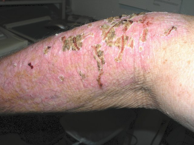 Hayes' Skin Problems 005.jpg